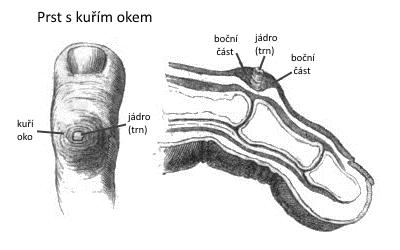 kuří oko jak vypadá, domácí a přírodní léčba
