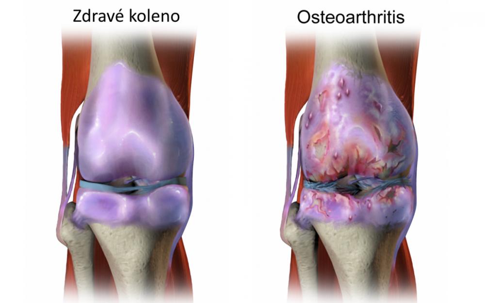 osteoartritida