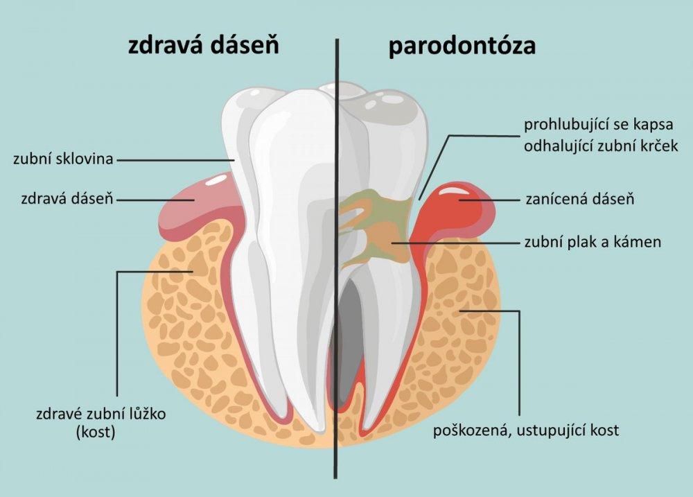 stadia paradentózy, parodontóza, parodontitida