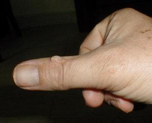 bradavice na rukou, přírodní léčba, Pleva