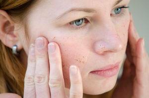 kosmetické ošetření, peeling