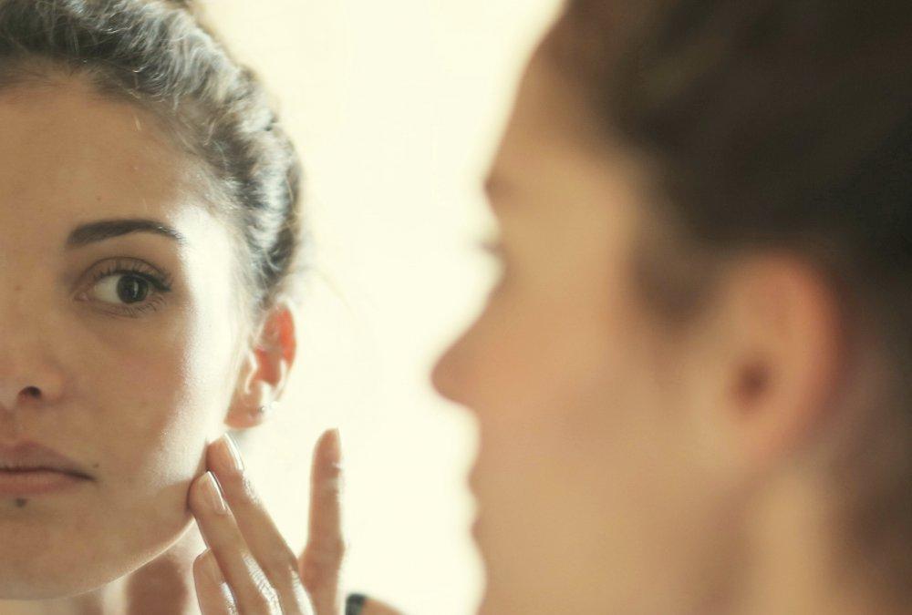 nemoc růžovka obrázky, rosacea přírodní léčba, kosmetika