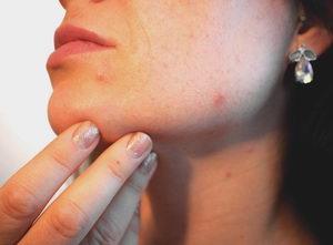 Problematická pleť a akné – vznik, řešení, kosmetika