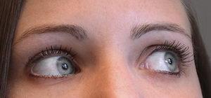 unavené oči, oční gymnastika