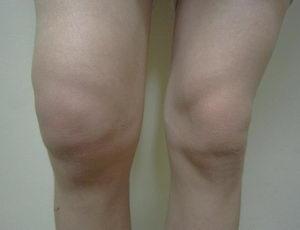 oteklé koleno