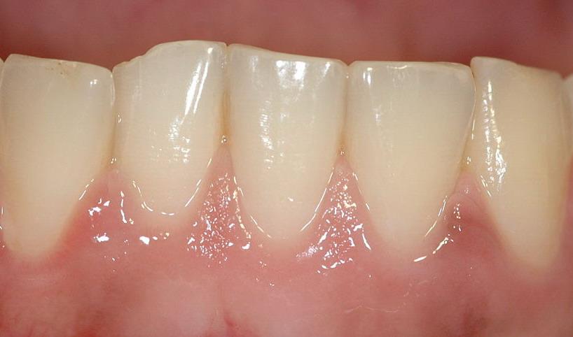 zdravé dásně