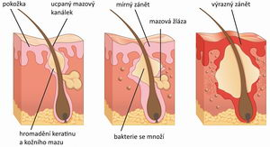vznik akné